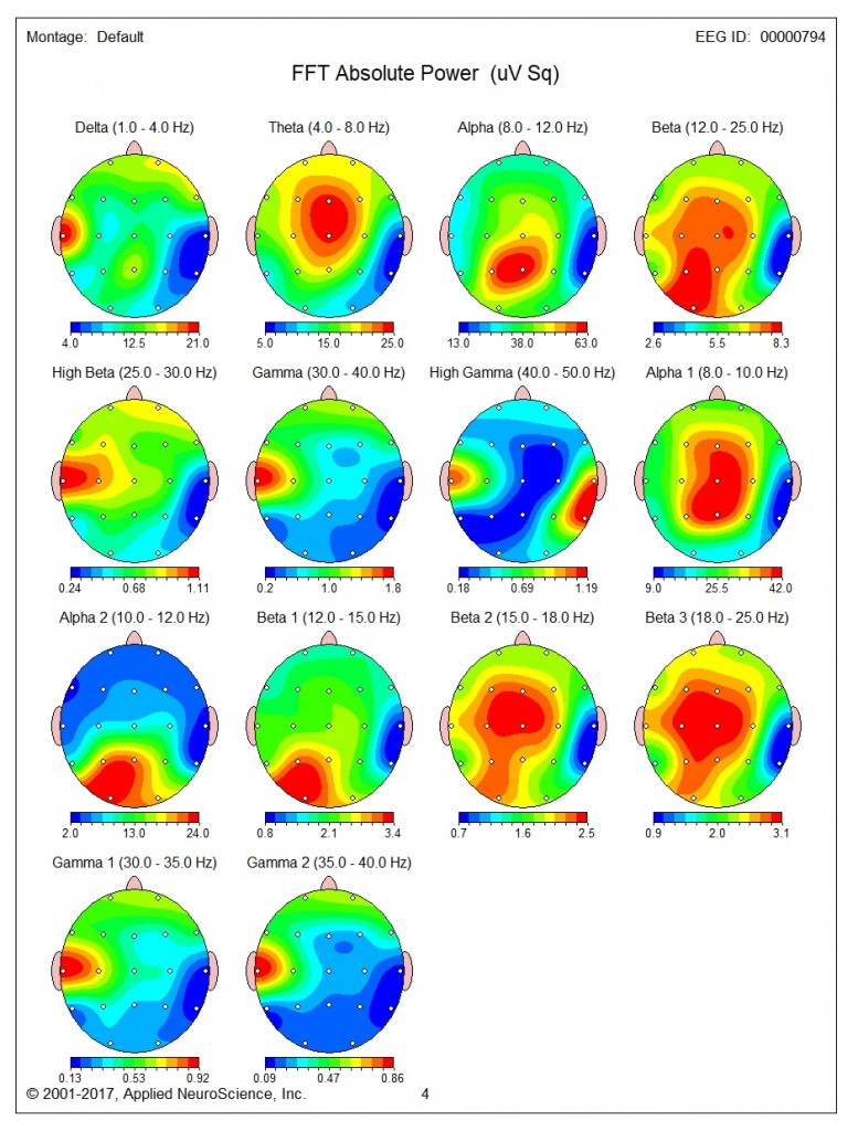 Dr.Schmid & Dr. Schmid - QEEG-essment und Brainmapping-Analyse on